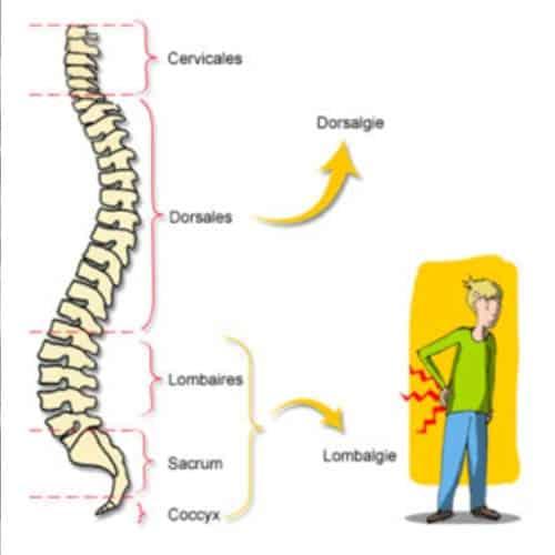 lombalgie aigue lombalgie chronique lombalgie traitement lombalgie def lombalgie symptomes lombalgie que faire lombalgie inflammatoire lombalgie sciatique centre du rachis