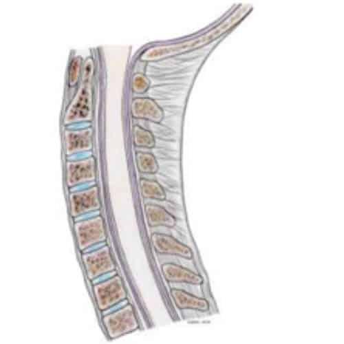 myelopathie cervico arthrosique myelopathie cervico-arthrosique myelopathie cervicarthrosique myelopathie degenerative centre du rachis 1