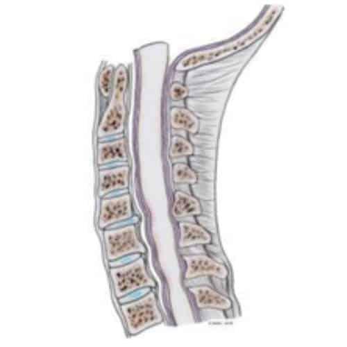 myelopathie cervico arthrosique myelopathie cervico-arthrosique myelopathie cervicarthrosique myelopathie degenerative centre du rachis 2